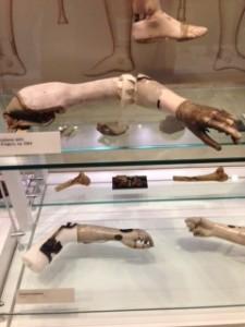 arm prosthetics